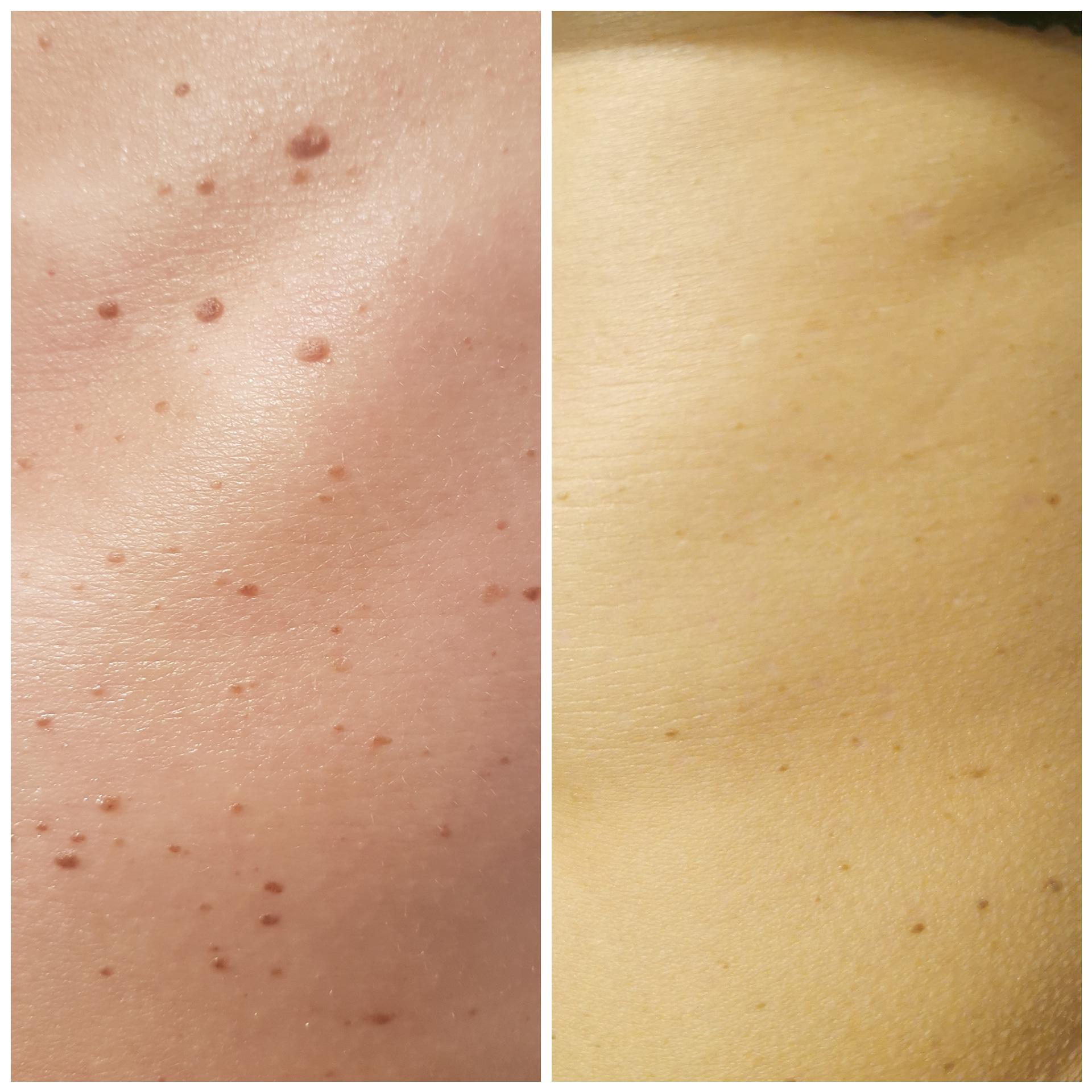 laserowe usuwanie zmian skórnych kraków, brodawek, włókniaków, prosaków,